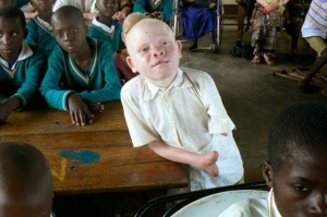 tanzanya-da-albino-cinayeti-tanzanya-albino-1477744