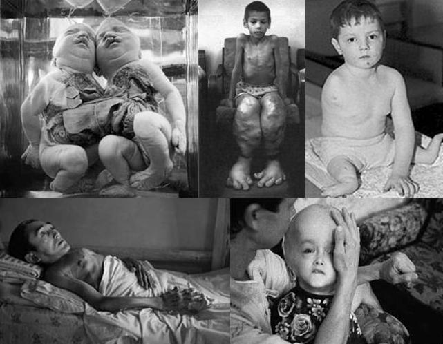 hayalet-sehir-pripiat-pripyat-cocuk-hastaliklari-tiroid.jpg